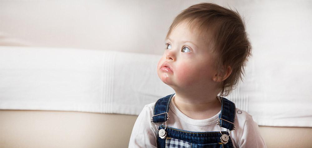 Bébé trisomie 21